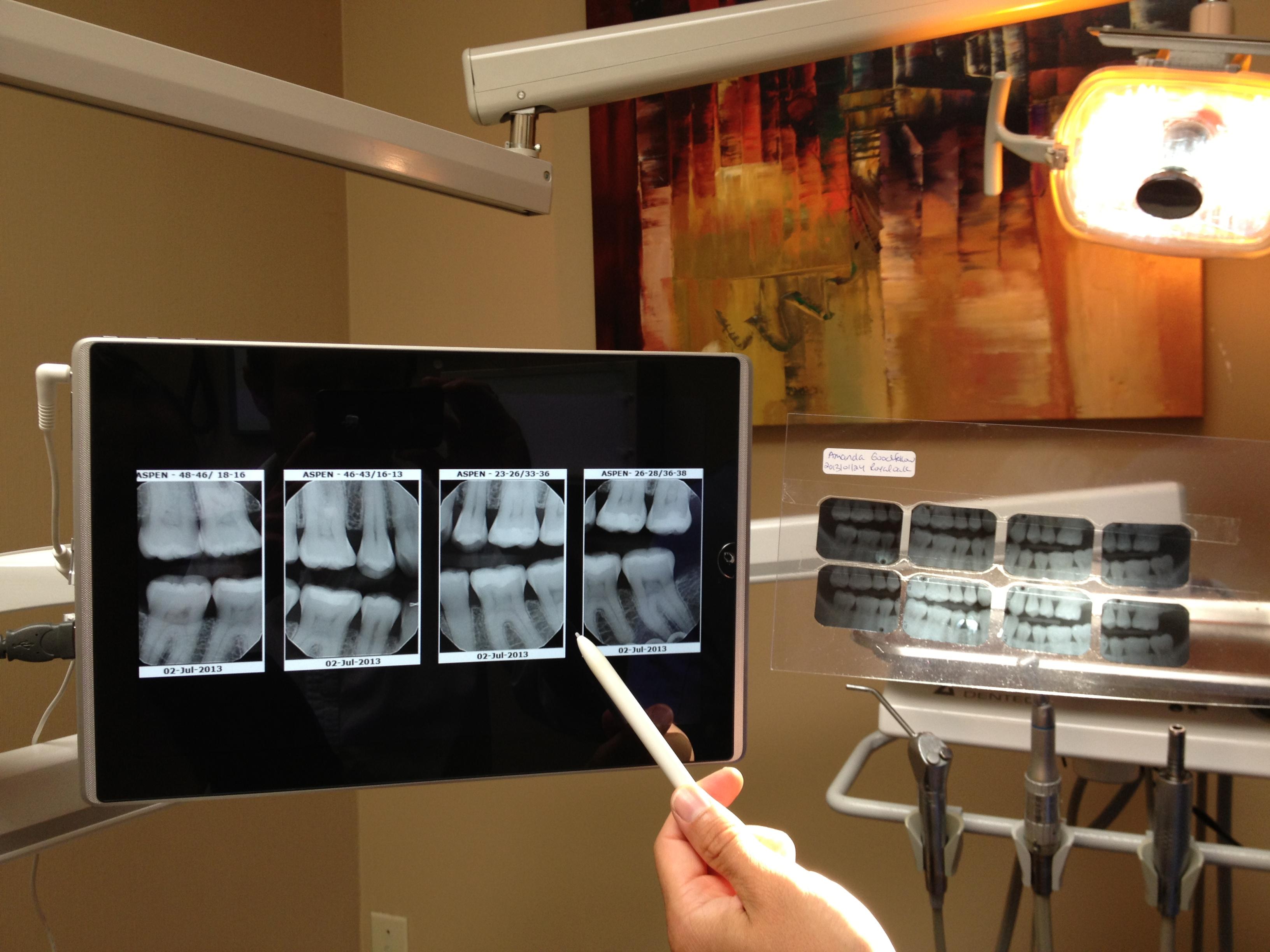 Trust informed dentist treatment services parkway dental old analog x ray comparison vs digital x rays solutioingenieria Choice Image