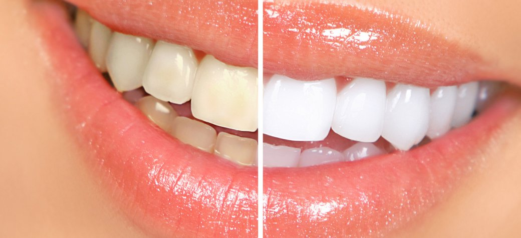 3. Botox Teeth Whitening & Healthy Smile Slider