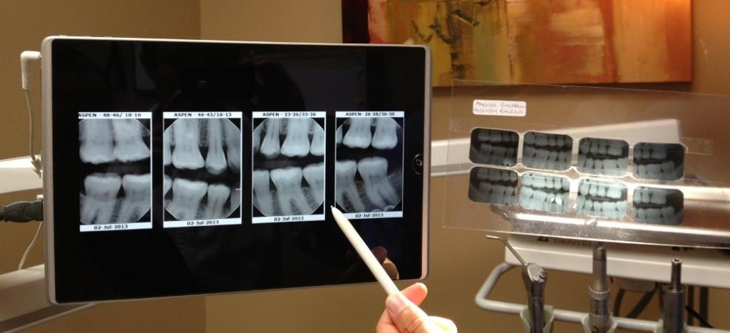 digital-vs-analog-dental-xray-1024x467