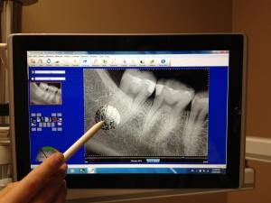 digital_Dental_Tech2